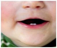 douleurs dentaires bébé